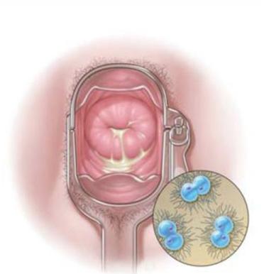 Gonorrhée femme