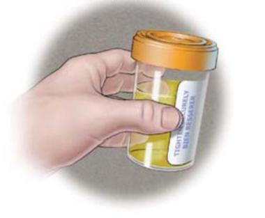 Méthode de dépistage urine