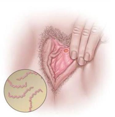Syphilis femme